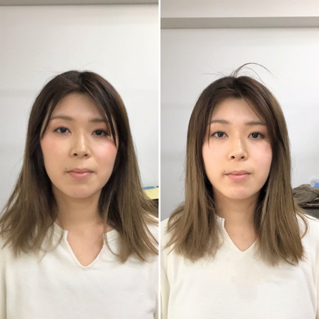 初回施術前 → 初回施術後